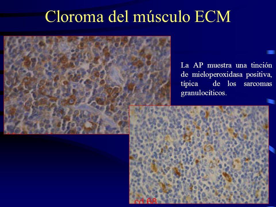 La AP muestra una tinción de mieloperoxidasa positiva, típica de los sarcomas granulocíticos. Cloroma del músculo ECM
