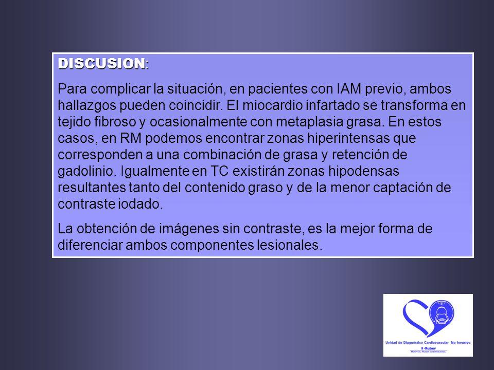 DISCUSION : Para complicar la situación, en pacientes con IAM previo, ambos hallazgos pueden coincidir. El miocardio infartado se transforma en tejido