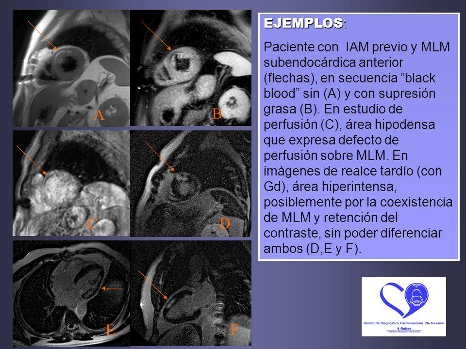 EJEMPLOS : Paciente con IAM previo y MLM subendocárdica anterior (flechas), en secuencia black blood sin (A) y con supresión grasa (B). En estudio de