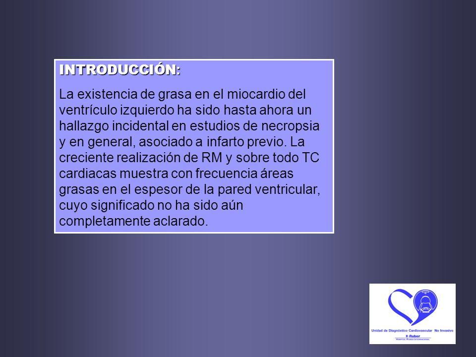 OBJETIVOS : Comprobar la frecuencia de aparición de áreas de metaplasia grasa miocárdica en estudios de Angio-TC coronario y resaltar su posible papel como fuente de error diagnóstico conceptual al confundirse con zonas de hipoperfusión o de realce tardío (en TC y RM respectivamente).