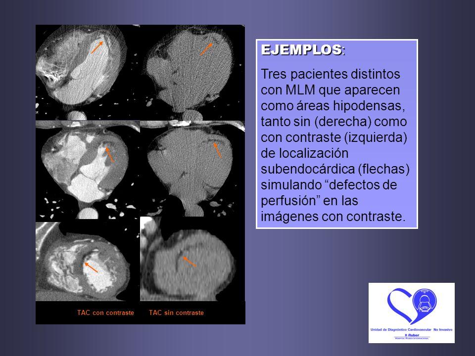 TAC con contraste TAC sin contraste EJEMPLOS : Tres pacientes distintos con MLM que aparecen como áreas hipodensas, tanto sin (derecha) como con contr