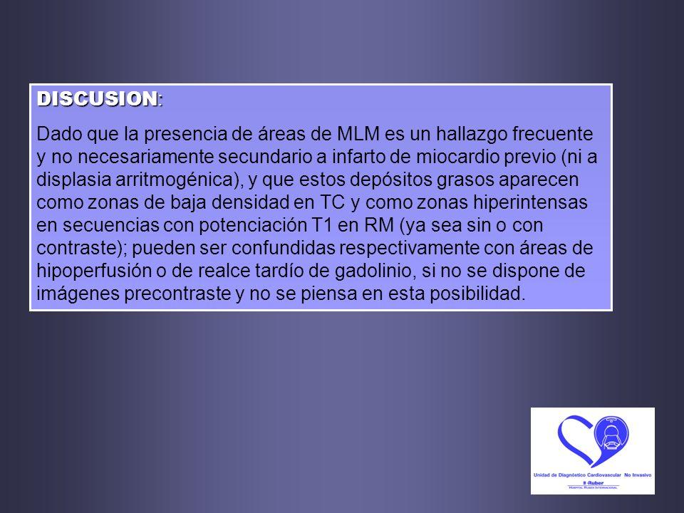 DISCUSION : Dado que la presencia de áreas de MLM es un hallazgo frecuente y no necesariamente secundario a infarto de miocardio previo (ni a displasi