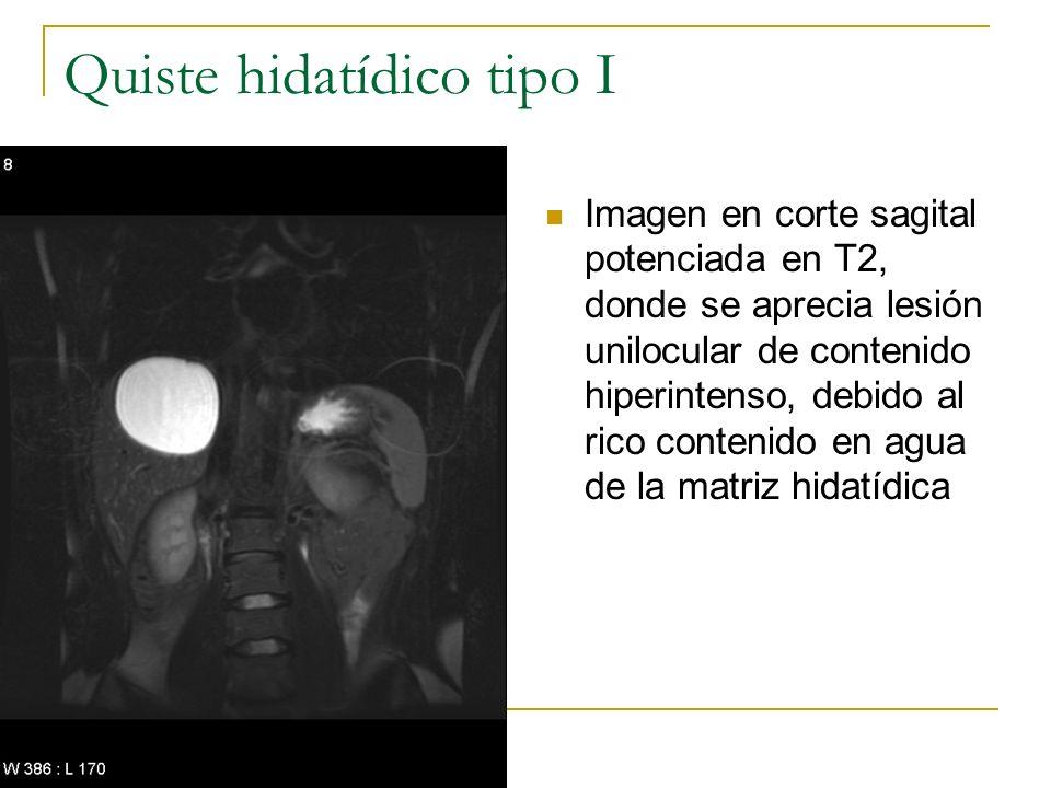 Quiste hidatídico tipo I Imagen en corte sagital potenciada en T2, donde se aprecia lesión unilocular de contenido hiperintenso, debido al rico conten