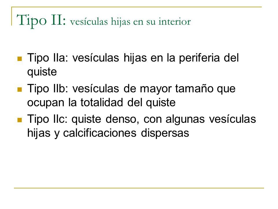 Tipo II: vesículas hijas en su interior Tipo IIa: vesículas hijas en la periferia del quiste Tipo IIb: vesículas de mayor tamaño que ocupan la totalid