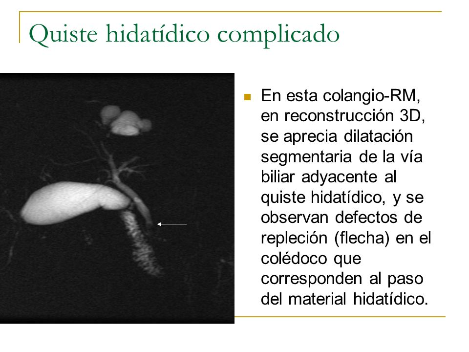 Quiste hidatídico complicado En esta colangio-RM, en reconstrucción 3D, se aprecia dilatación segmentaria de la vía biliar adyacente al quiste hidatíd