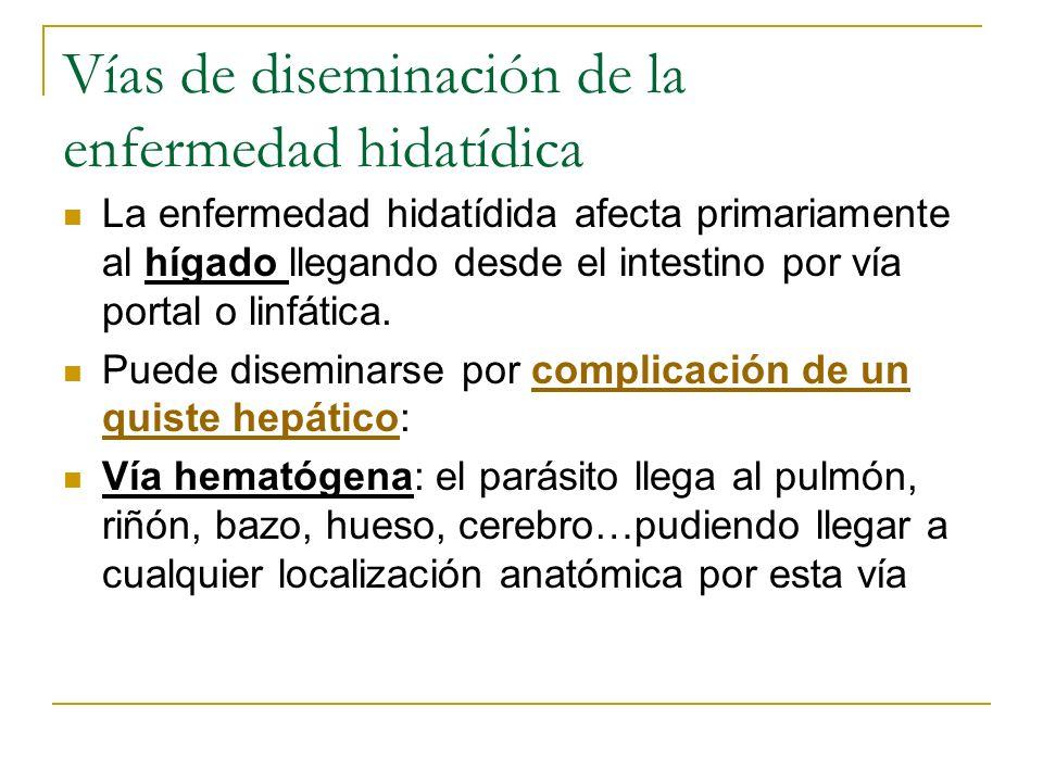 Vías de diseminación de la enfermedad hidatídica La enfermedad hidatídida afecta primariamente al hígado llegando desde el intestino por vía portal o