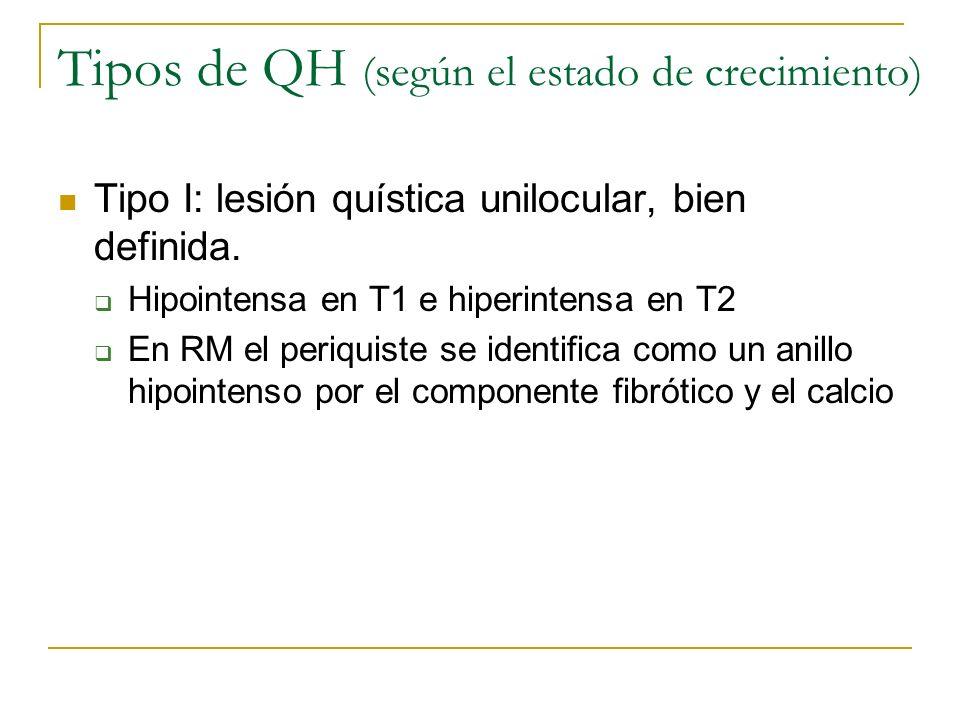 Tipos de QH (según el estado de crecimiento) Tipo I: lesión quística unilocular, bien definida. Hipointensa en T1 e hiperintensa en T2 En RM el periqu