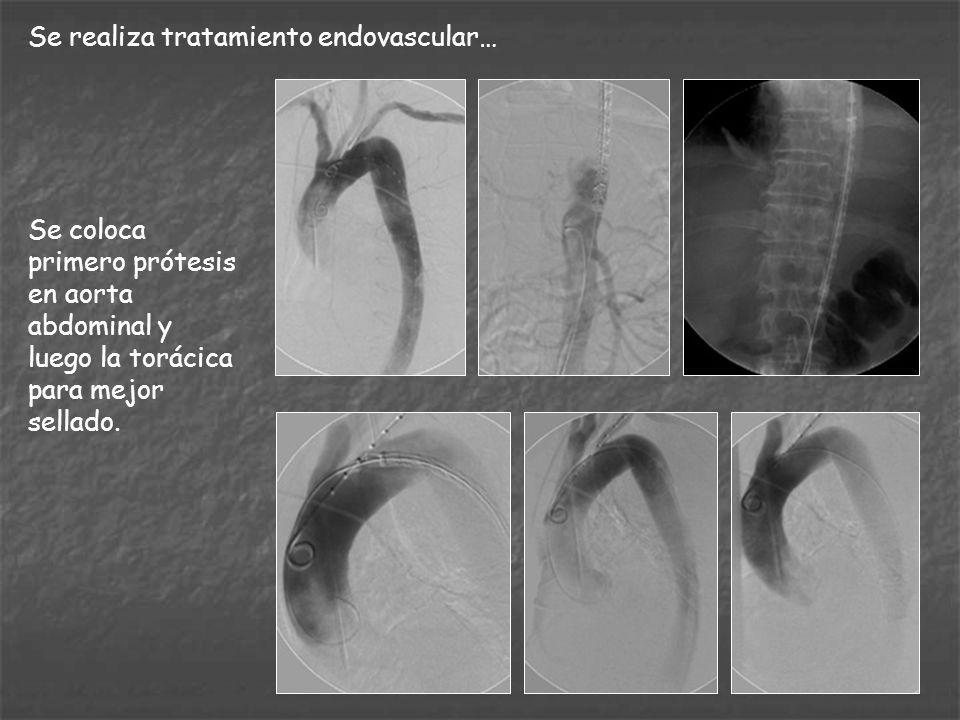 Se realiza tratamiento endovascular… Se coloca primero prótesis en aorta abdominal y luego la torácica para mejor sellado.
