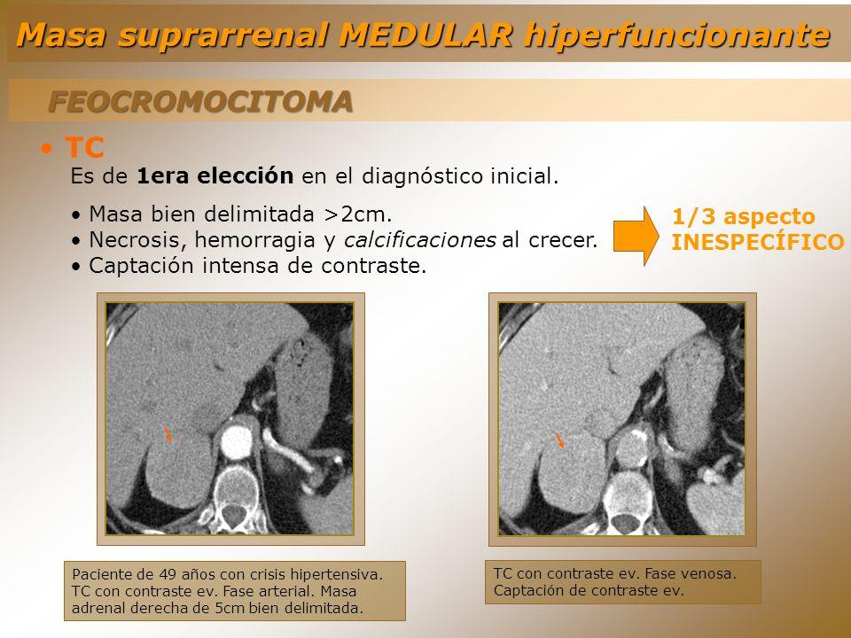 FEOCROMOCITOMA TC Es de 1era elección en el diagnóstico inicial. Masa bien delimitada >2cm. Necrosis, hemorragia y calcificaciones al crecer. Captació