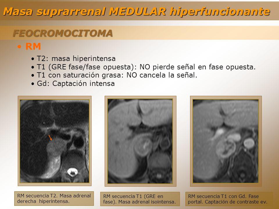 FEOCROMOCITOMA FEOCROMOCITOMA RM secuencia T2. Masa adrenal derecha hiperintensa. RM T2: masa hiperintensa T1 (GRE fase/fase opuesta): NO pierde señal