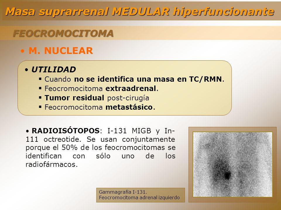 M. NUCLEAR UTILIDAD Cuando no se identifica una masa en TC/RMN. Feocromocitoma extraadrenal. Tumor residual post-cirugía Feocromocitoma metastásico. G