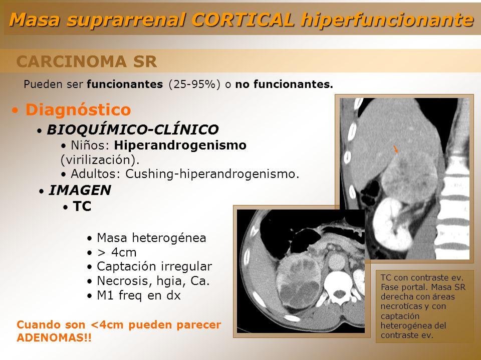 CARCINOMA SR Diagnóstico BIOQUÍMICO-CLÍNICO Niños: Hiperandrogenismo (virilización). Adultos: Cushing-hiperandrogenismo. Pueden ser funcionantes (25-9