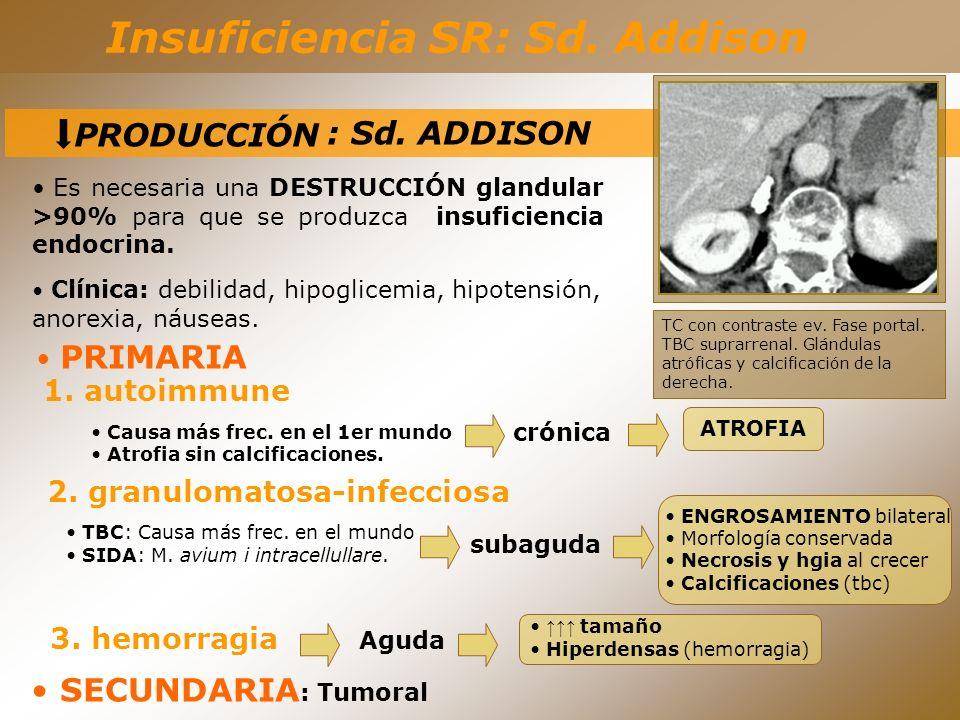 Insuficiencia SR: Sd. Addison 2. granulomatosa-infecciosa TBC: Causa más frec. en el mundo SIDA: M. avium i intracellullare. crónica ATROFIA subaguda