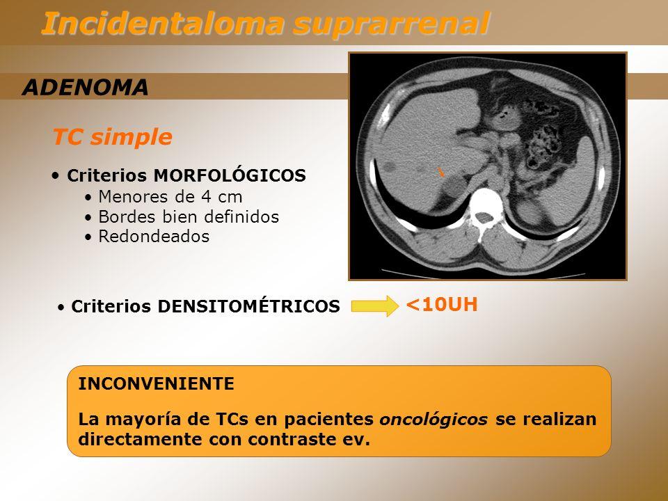 TC simple ADENOMA Incidentaloma suprarrenal Criterios MORFOLÓGICOS Menores de 4 cm Bordes bien definidos Redondeados <10UH INCONVENIENTE La mayoría de