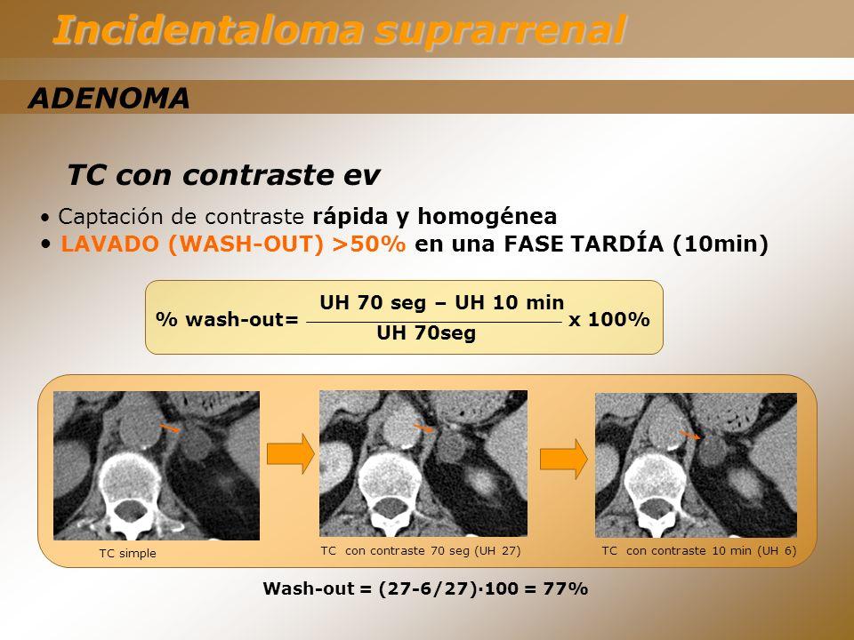 TC con contraste ev Captación de contraste rápida y homogénea LAVADO (WASH-OUT) >50% en una FASE TARDÍA (10min) TC simple TC con contraste 70 seg (UH
