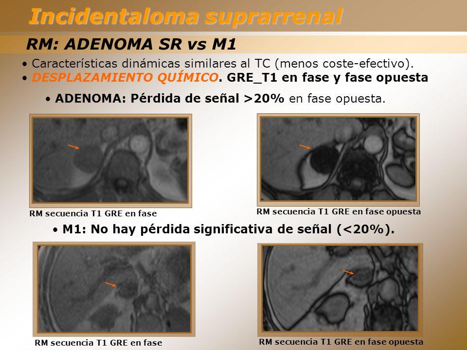 RM: ADENOMA SR vs M1 Características dinámicas similares al TC (menos coste-efectivo). DESPLAZAMIENTO QUÍMICO. GRE_T1 en fase y fase opuesta ADENOMA: