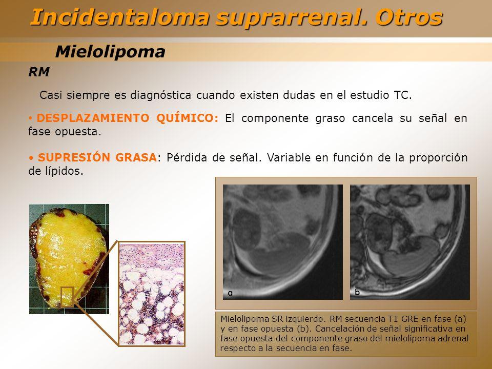 Mielolipoma RM Casi siempre es diagnóstica cuando existen dudas en el estudio TC. DESPLAZAMIENTO QUÍMICO: El componente graso cancela su señal en fase