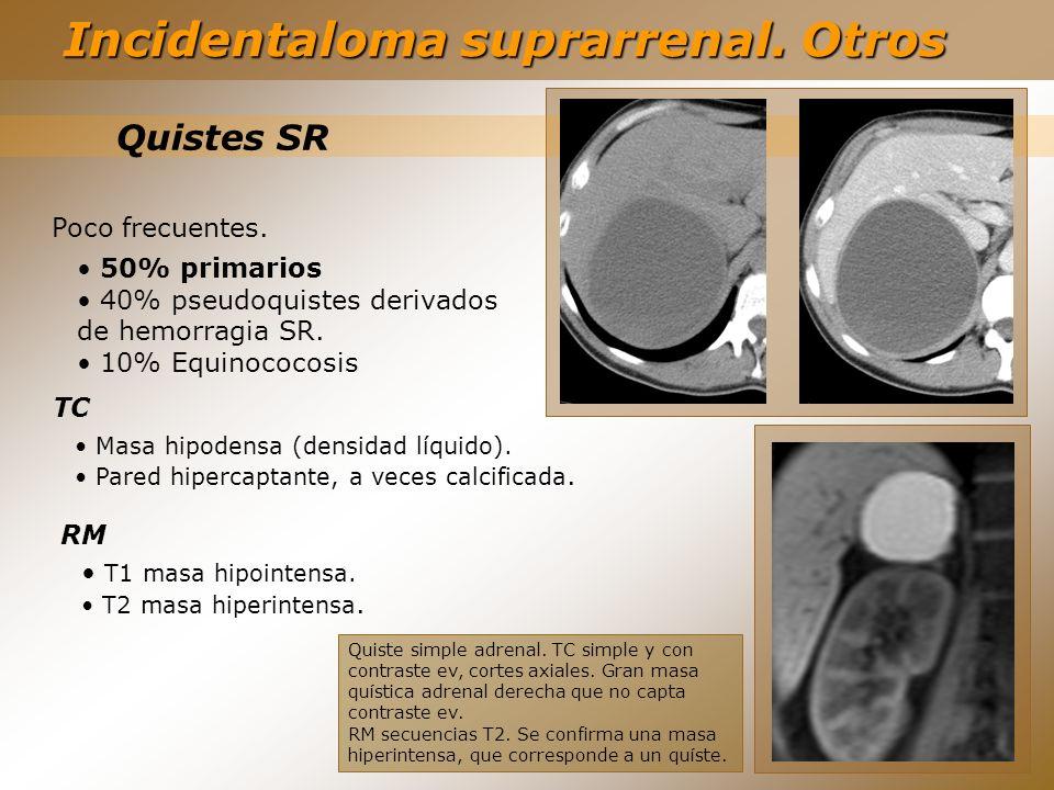 Quistes SR 50% primarios 40% pseudoquistes derivados de hemorragia SR. 10% Equinococosis Poco frecuentes. TC Masa hipodensa (densidad líquido). Pared