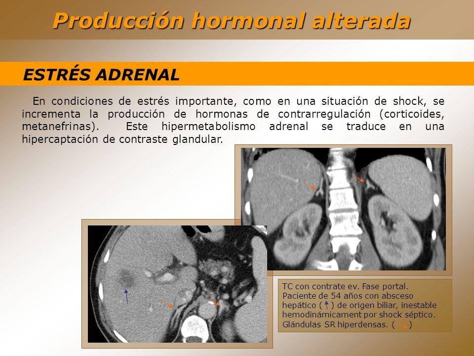 Producción hormonal alterada ESTRÉS ADRENAL En condiciones de estrés importante, como en una situación de shock, se incrementa la producción de hormon