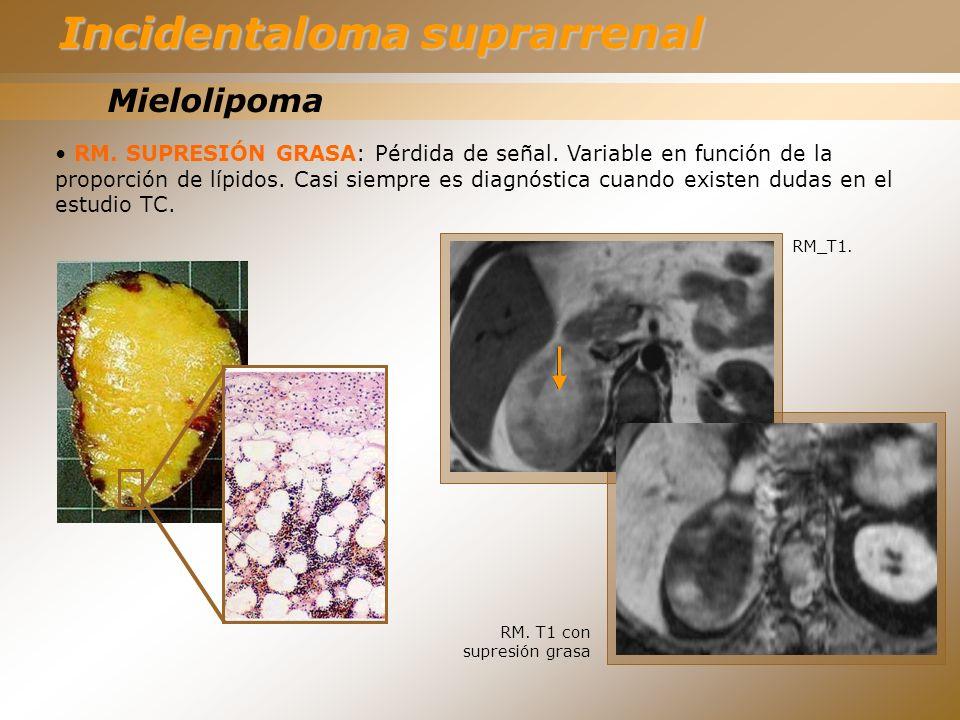 Mielolipoma RM. SUPRESIÓN GRASA: Pérdida de señal. Variable en función de la proporción de lípidos. Casi siempre es diagnóstica cuando existen dudas e