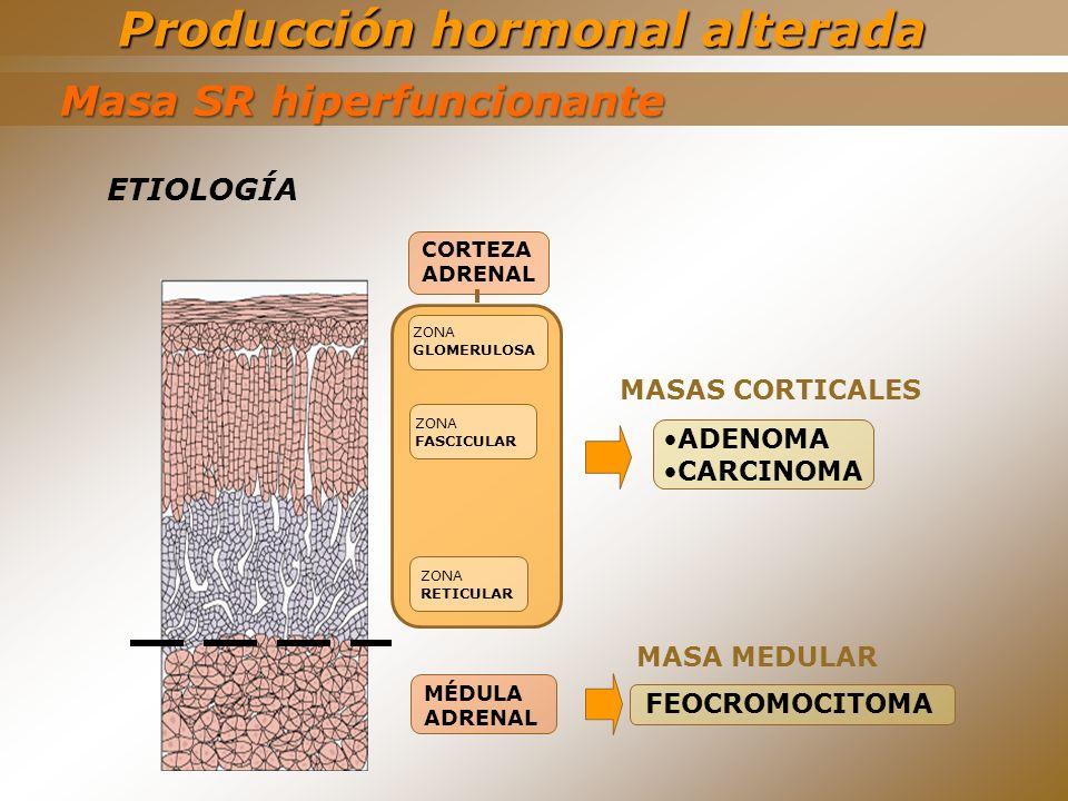 MÉDULA ADRENAL CORTEZA ADRENAL ZONA FASCICULAR ZONA GLOMERULOSA ZONA RETICULAR ADENOMA CARCINOMA FEOCROMOCITOMA Producción hormonal alterada Masa SR h