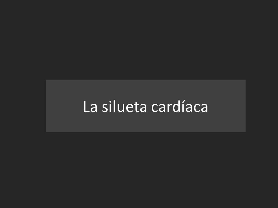 La silueta cardíaca