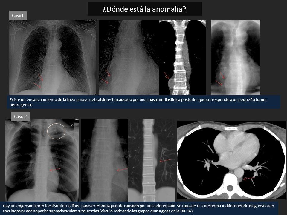 ¿Dónde está la anomalía? Existe un ensanchamiento de la línea paravertebral derecha causado por una masa mediastínica posterior que corresponde a un p