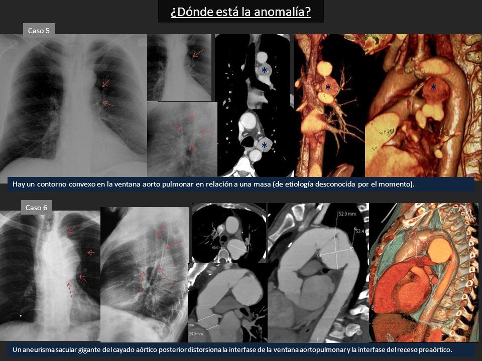 Hay un contorno convexo en la ventana aorto pulmonar en relación a una masa (de etiología desconocida por el momento). Un aneurisma sacular gigante de