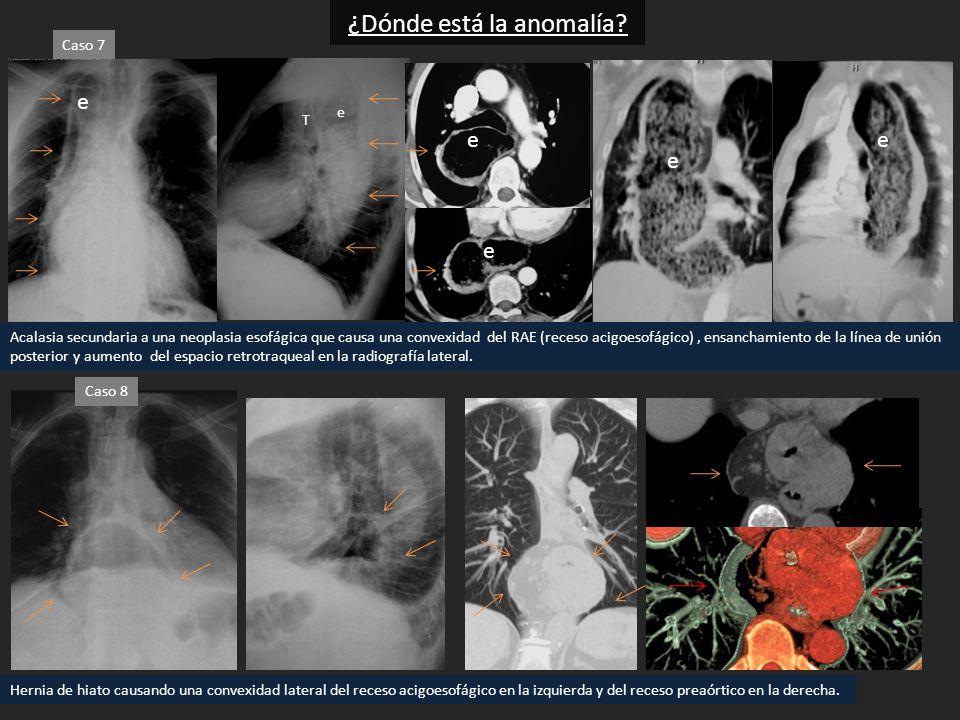 Acalasia secundaria a una neoplasia esofágica que causa una convexidad del RAE (receso acigoesofágico), ensanchamiento de la línea de unión posterior