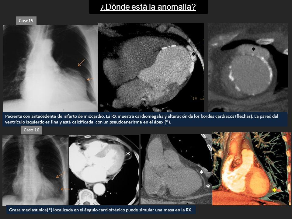 ¿Dónde está la anomalía? Caso15 Paciente con antecedente de infarto de miocardio. La RX muestra cardiomegalia y alteración de los bordes cardíacos (fl
