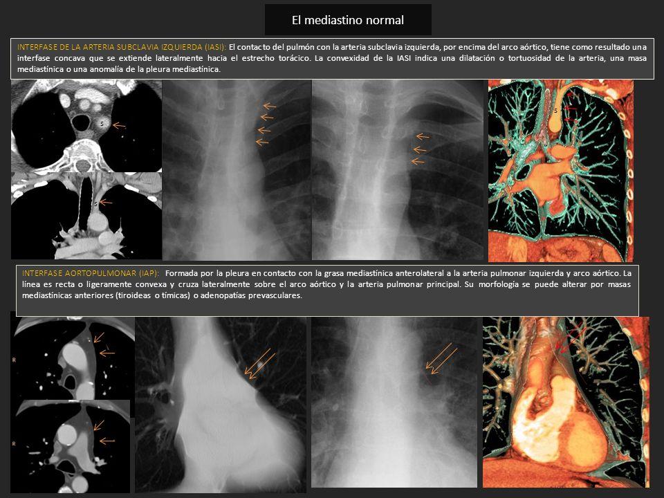 s s s INTERFASE DE LA ARTERIA SUBCLAVIA IZQUIERDA (IASI): El contacto del pulmón con la arteria subclavia izquierda, por encima del arco aórtico, tien