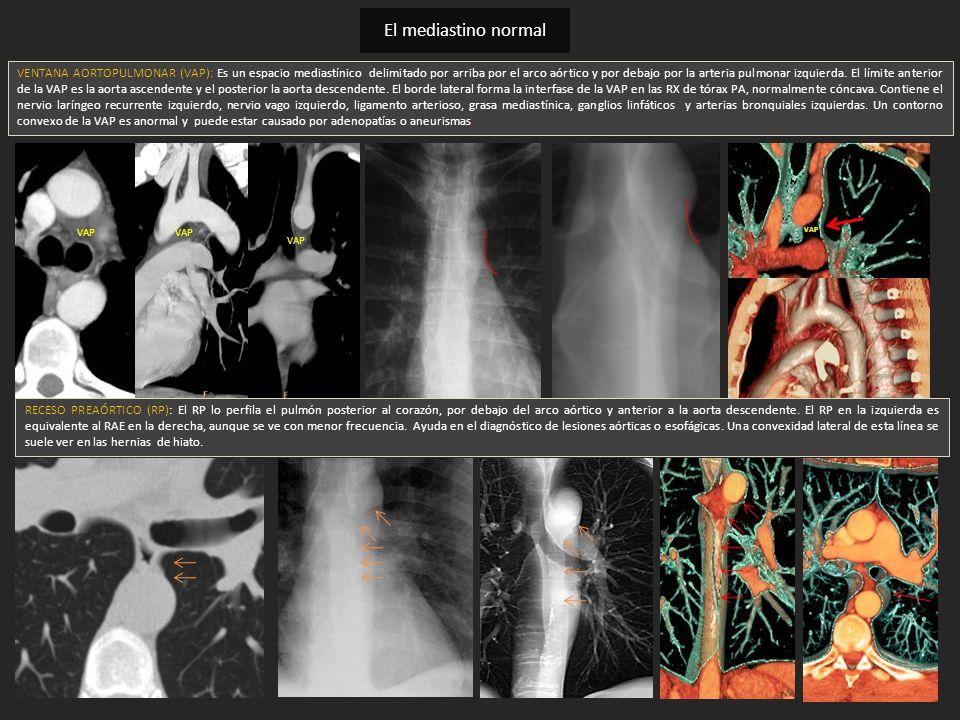 VENTANA AORTOPULMONAR (VAP): Es un espacio mediastínico delimitado por arriba por el arco aórtico y por debajo por la arteria pulmonar izquierda. El l