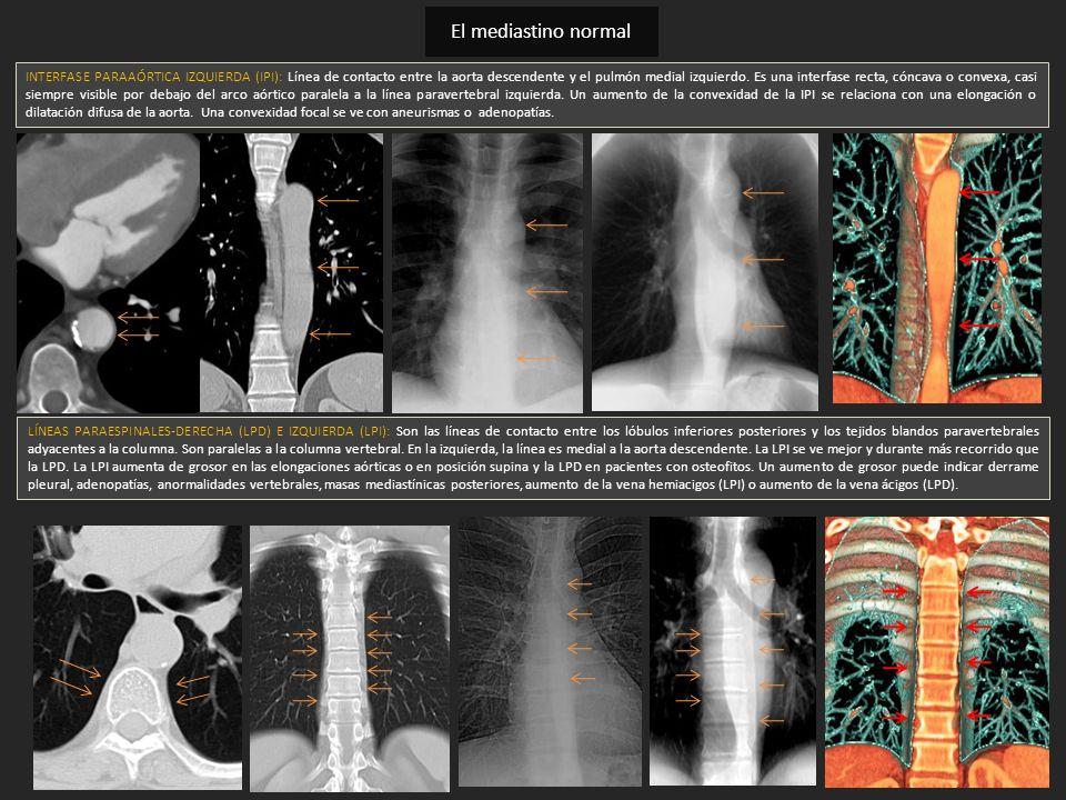 INTERFASE PARAAÓRTICA IZQUIERDA (IPI): Línea de contacto entre la aorta descendente y el pulmón medial izquierdo. Es una interfase recta, cóncava o co