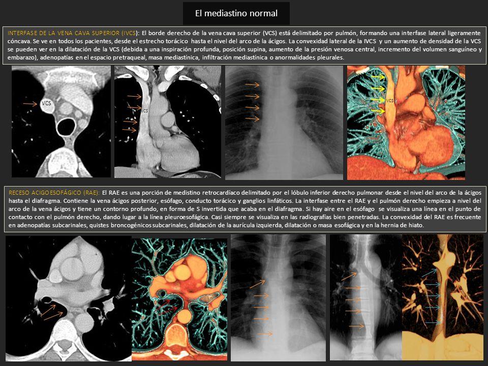 INTERFASE DE LA VENA CAVA SUPERIOR (IVCS): El borde derecho de la vena cava superior (VCS) está delimitado por pulmón, formando una interfase lateral
