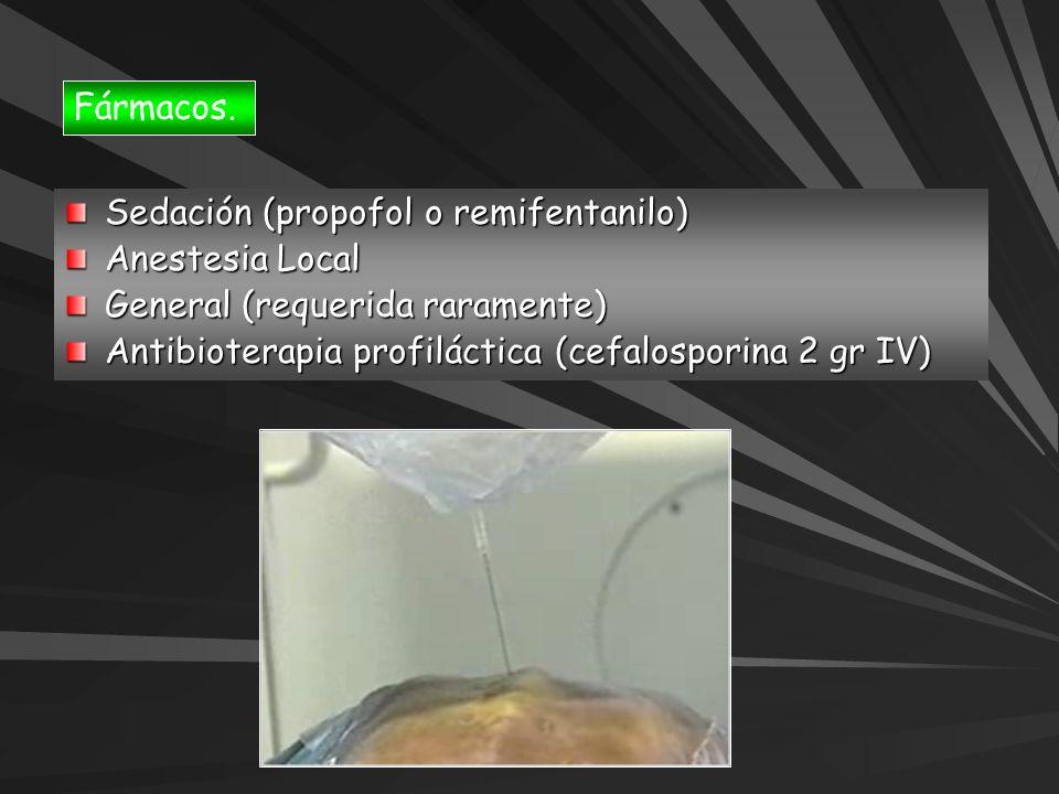 Fármacos. Sedación (propofol o remifentanilo) Anestesia Local General (requerida raramente) Antibioterapia profiláctica (cefalosporina 2 gr IV)