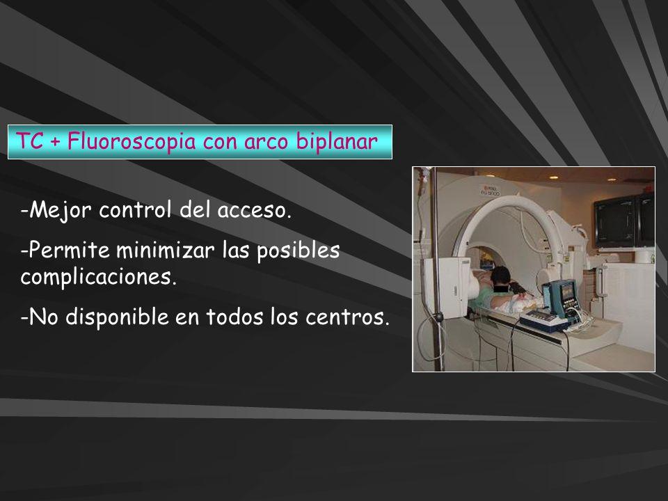 TC + Fluoroscopia con arco biplanar -Mejor control del acceso. -Permite minimizar las posibles complicaciones. -No disponible en todos los centros.