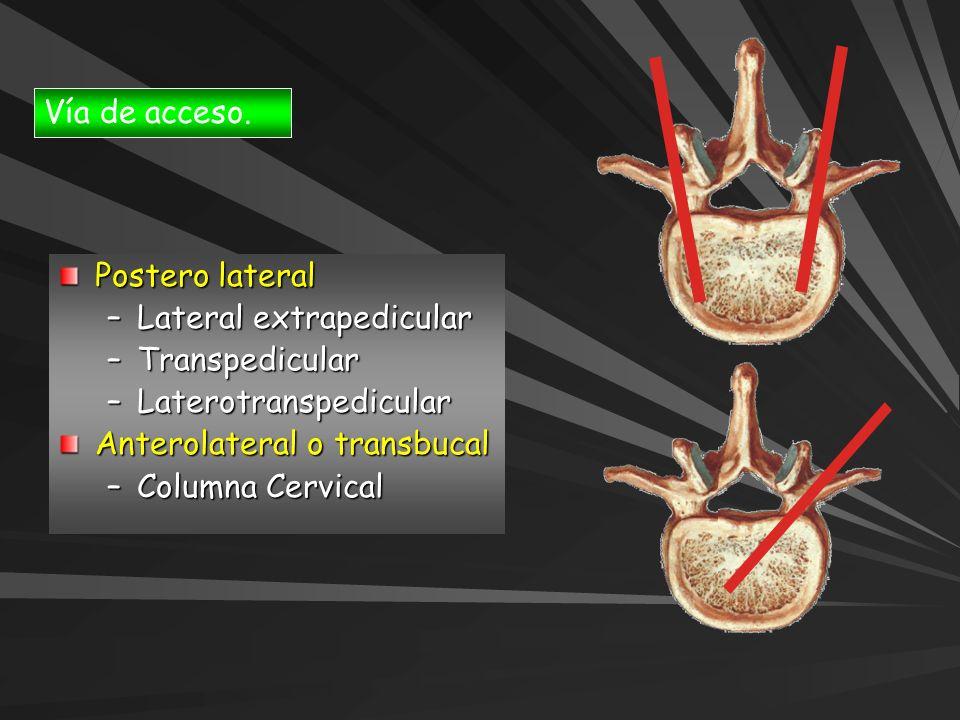 Vía de acceso. Postero lateral –Lateral extrapedicular –Transpedicular –Laterotranspedicular Anterolateral o transbucal –Columna Cervical