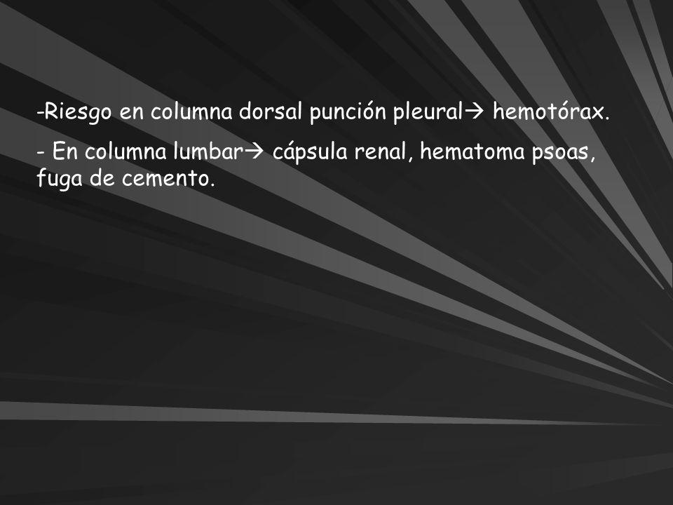 -Riesgo en columna dorsal punción pleural hemotórax. - En columna lumbar cápsula renal, hematoma psoas, fuga de cemento.
