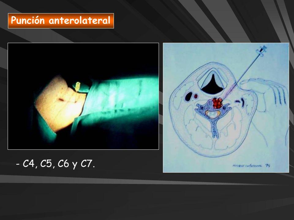 Punción anterolateral - C4, C5, C6 y C7.