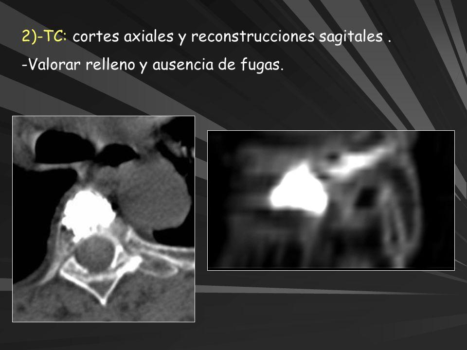 2)-TC: cortes axiales y reconstrucciones sagitales. -Valorar relleno y ausencia de fugas.