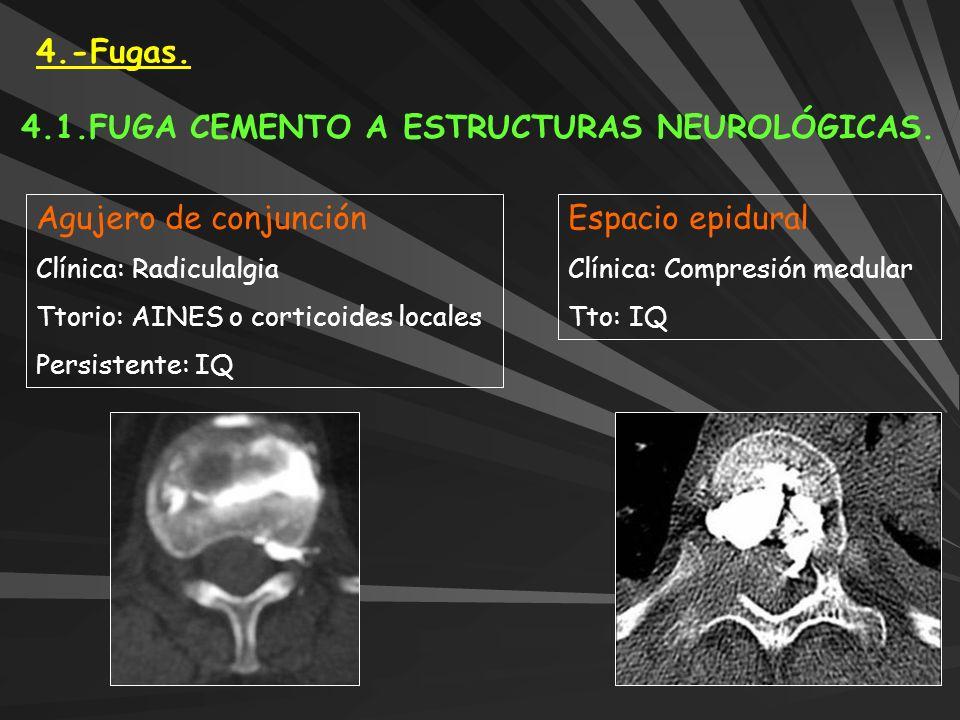 4.-Fugas. 4.1.FUGA CEMENTO A ESTRUCTURAS NEUROLÓGICAS. Agujero de conjunción Clínica: Radiculalgia Ttorio: AINES o corticoides locales Persistente: IQ
