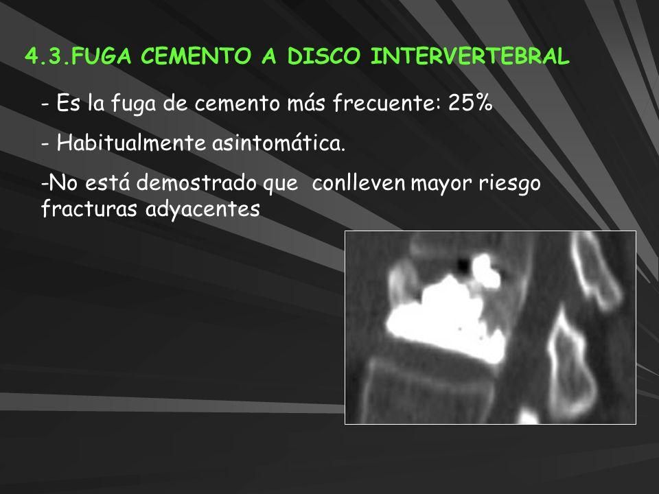4.3.FUGA CEMENTO A DISCO INTERVERTEBRAL - Es la fuga de cemento más frecuente: 25% - Habitualmente asintomática. -No está demostrado que conlleven may