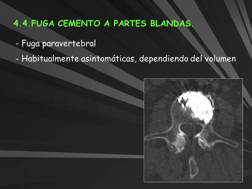4.4.FUGA CEMENTO A PARTES BLANDAS. - Fuga paravertebral - Habitualmente asintomáticas, dependiendo del volumen