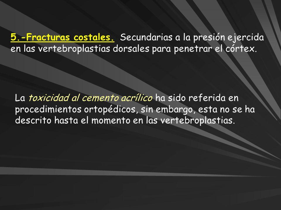5.-Fracturas costales. Secundarias a la presión ejercida en las vertebroplastias dorsales para penetrar el córtex. La toxicidad al cemento acrílico ha