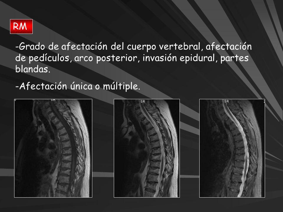 RM -Grado de afectación del cuerpo vertebral, afectación de pedículos, arco posterior, invasión epidural, partes blandas. -Afectación única o múltiple