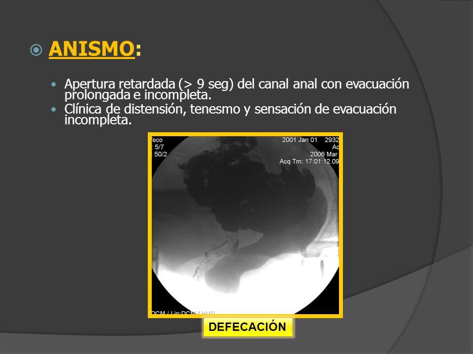 ANISMO: Apertura retardada (> 9 seg) del canal anal con evacuación prolongada e incompleta. Clínica de distensión, tenesmo y sensación de evacuación i
