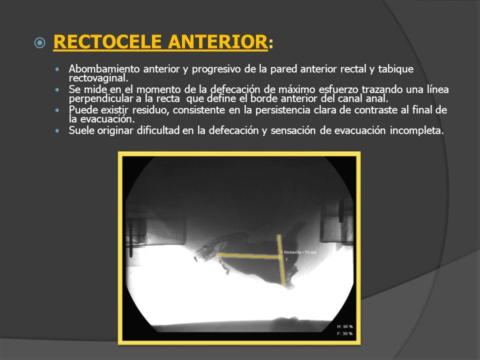 RECTOCELE ANTERIOR : Abombamiento anterior y progresivo de la pared anterior rectal y tabique rectovaginal. Se mide en el momento de la defecación de