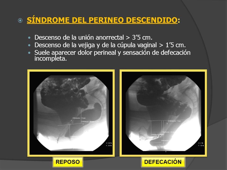 SÍNDROME DEL PERINEO DESCENDIDO: Descenso de la unión anorrectal > 35 cm. Descenso de la vejiga y de la cúpula vaginal > 15 cm. Suele aparecer dolor p