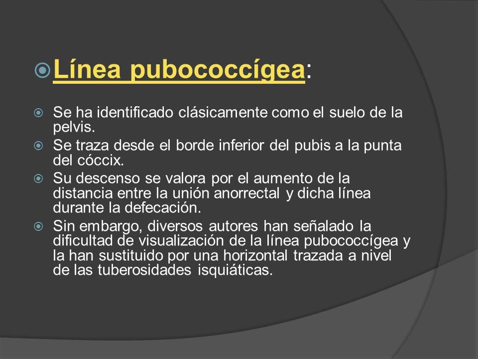 Línea pubococcígea: Se ha identificado clásicamente como el suelo de la pelvis. Se traza desde el borde inferior del pubis a la punta del cóccix. Su d