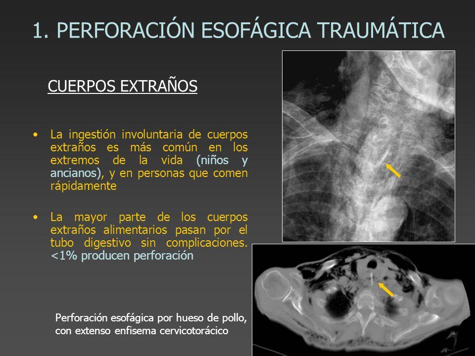 1. PERFORACIÓN ESOFÁGICA TRAUMÁTICA La ingestión involuntaria de cuerpos extraños es más común en los extremos de la vida (niños y ancianos), y en per